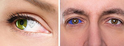 Eyeball with gem on it and man with an eye tattooed blue